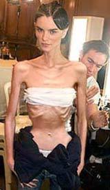 DOC.010 ¿Anorexia en las pasarelas?